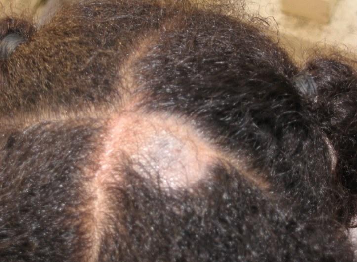 hair loss, scalp problems, ringworm, human hair, brazilian hair, hair color